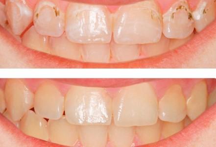 Кариес депульпированного зуба